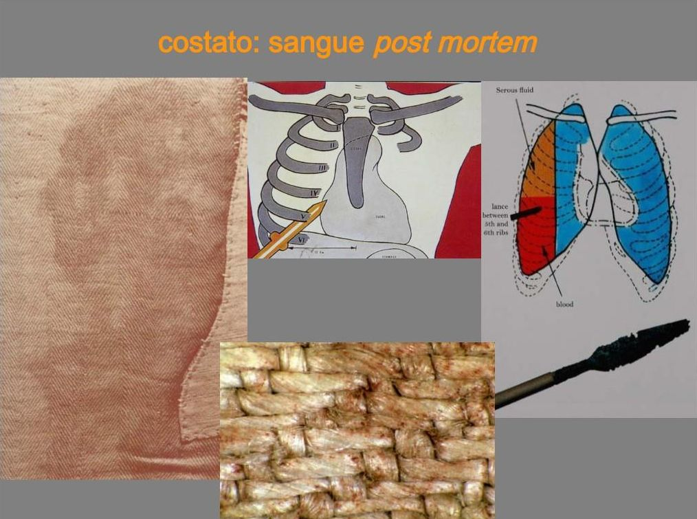 Costato: sangue post mortem