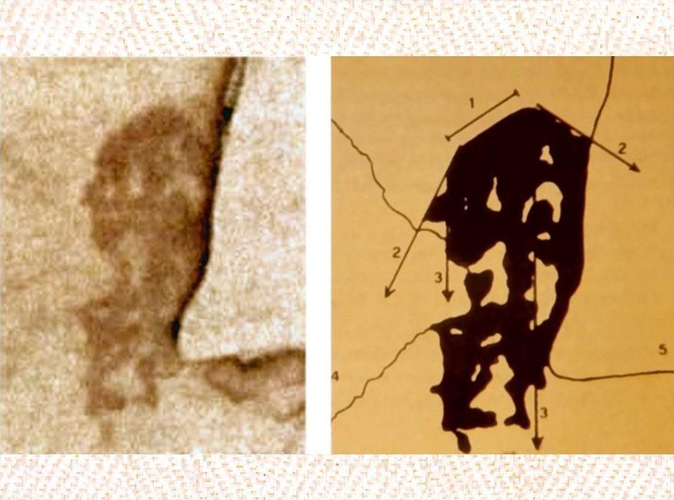 Foto e schemo del costato sindonico