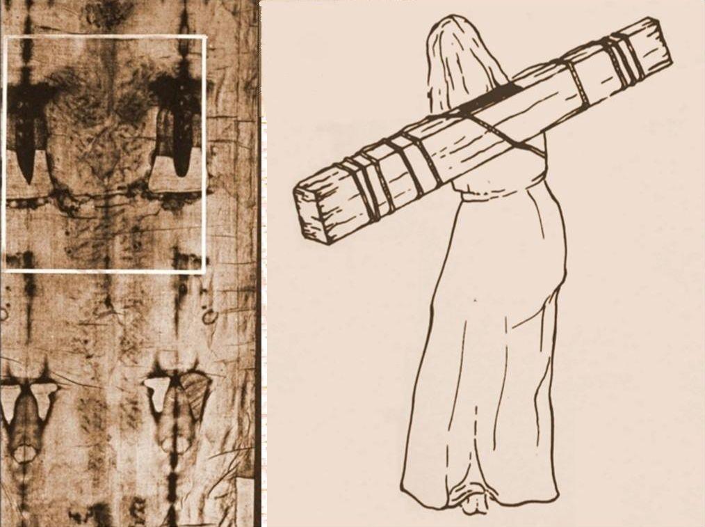 Escoriazioni e disegno del patibulum