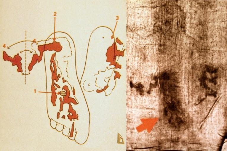 Particolare dei piedi del corpo sindonico e schema delle ferite