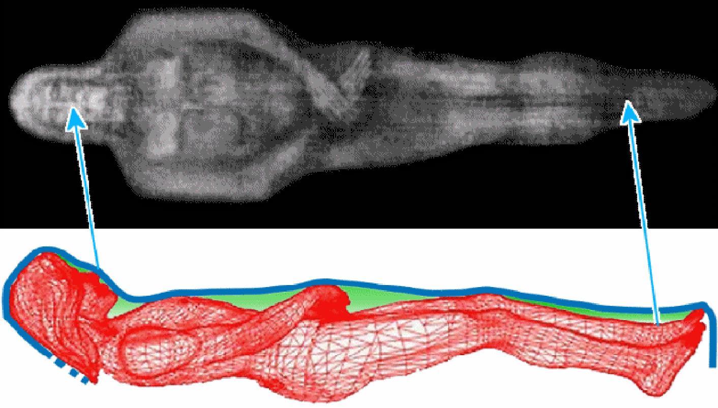 Elaborazione grafica dei punti di contatto tra il corpo sindonico ed il telo